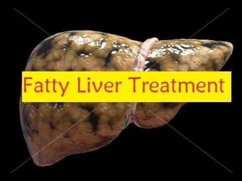 Fatty Liver Treatment - How to Reverse a Fatty Liver