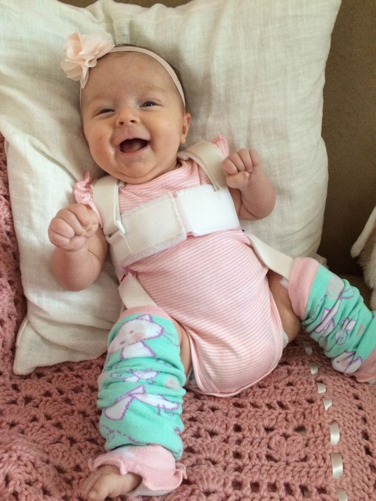 Pavlik Harness Care- Caring for a baby in a Pavlik isn't easy. Here are a few tips that I have to offer from my own experience.  Hip Dysplasia, Pavlik Harness, DDH, Hip Hip Hooray, Health Hips