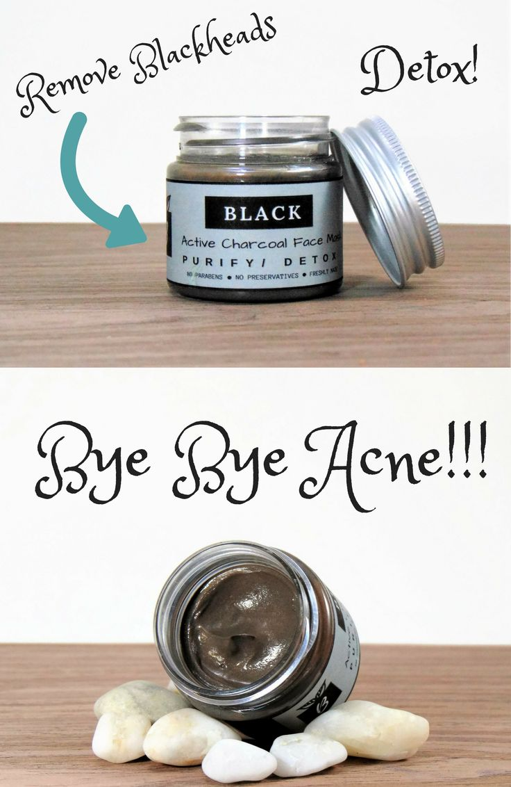 Anti Acne Activated Charcoal Detox Face Mask