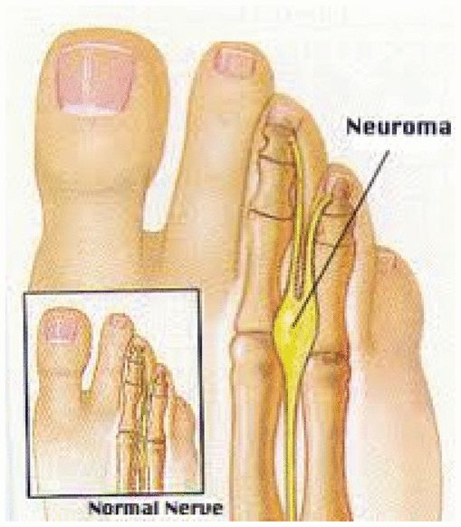 Morton's Neuroma Therapeutic Massage Provides Pain Relief to a Client with Morton's Neuroma: A Case Report | Davis, BA, RMT, NCTMB, AOS | International Journal of Therapeutic Massage & Bodywork: Research, Education, & Practice