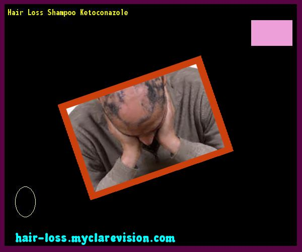 Hair Loss Shampoo Ketoconazole 084129 - Hair Loss Cure!