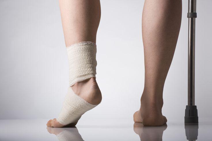 El esguince de tobillo | Lesiones | Runners.es