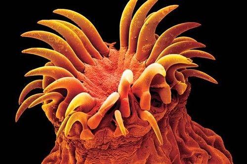 Очищение организма от паразитов