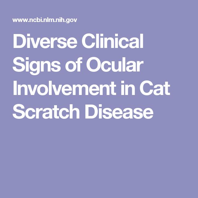 Diverse Clinical Signs of Ocular Involvement in Cat Scratch Disease
