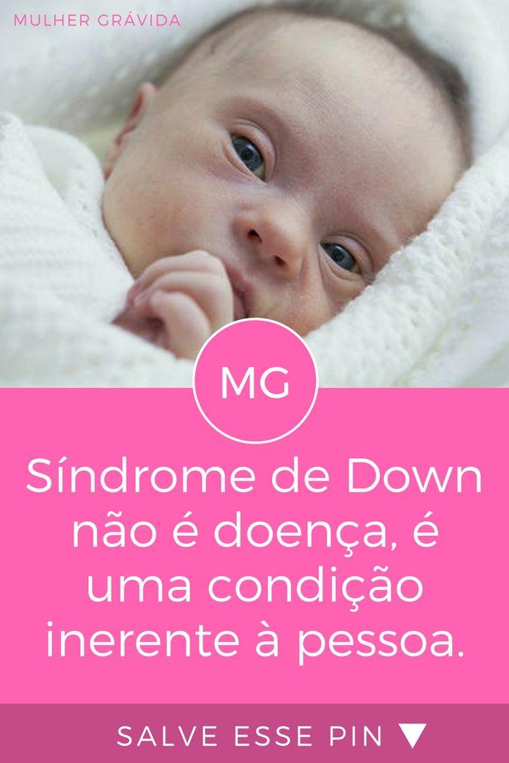 Síndrome de down | Síndrome de Down não é doença, é uma condição inerente à pessoa; Não há cura ou tratamento