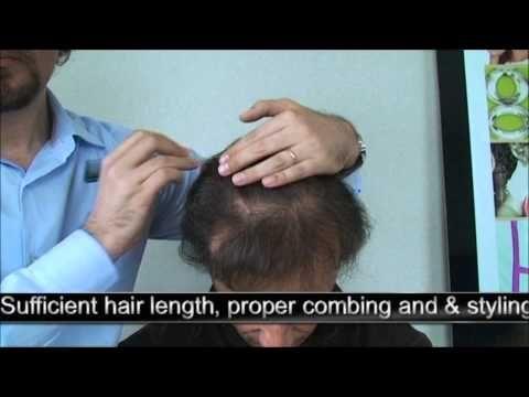 5118 FUT  Hattingen Hair  Switzerland