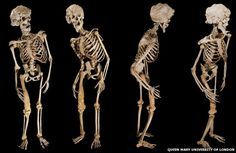 Joseph Merrick's skeleton a.k.a The Elephant Man. 123 years after his death, scientists think they have narrowed down his condition; Neurofibromatosis type 1, or Proteus Syndrome