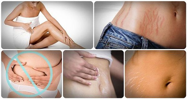 How to Fade Stretch Marks Naturally