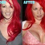 Jane Goldman plastic surgery