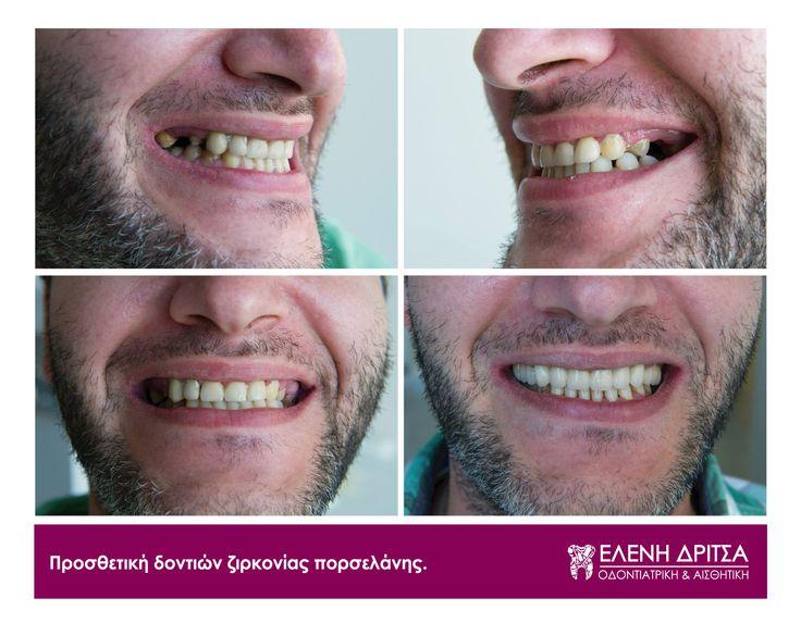 Γιατί πλεονεκτεί η λύση του οδοντικού εμφυτεύματος; Είναι ο πιο φυσικός τρόπος αντικατάστασης των ελλειπόντων δοντιών, χωρίς να χρειάζεται καμία επέμβαση στα παρακείμενα δόντια. photo © Vicky Lafazani - Roligraphics / Graphic Designer