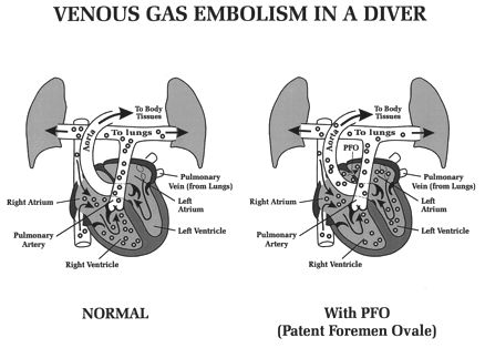 Effects of Increased Dissolved Nitrogen From Scuba Diving: Decompression Sickness