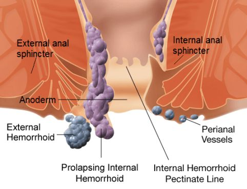 Home Remedies for Piles (Hemorrhoids) Treatment Naturally