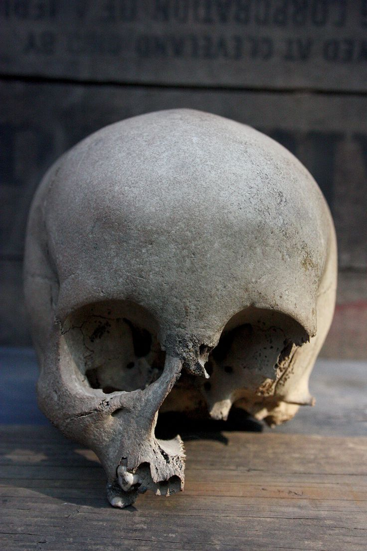 19th Century Human Child Skull - http://cabinetofcuriosities.ca/shop/billy-jamieson-collection/19th-century-human-child-skull/