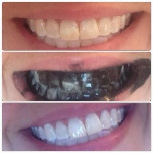 Not sure if activated charcoal can brighten your teeth, but it may help fight gas and bloating.