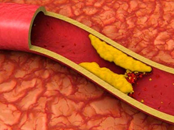 8 ótimos remédios caseiros para colesterol   Cura pela Natureza.com.br