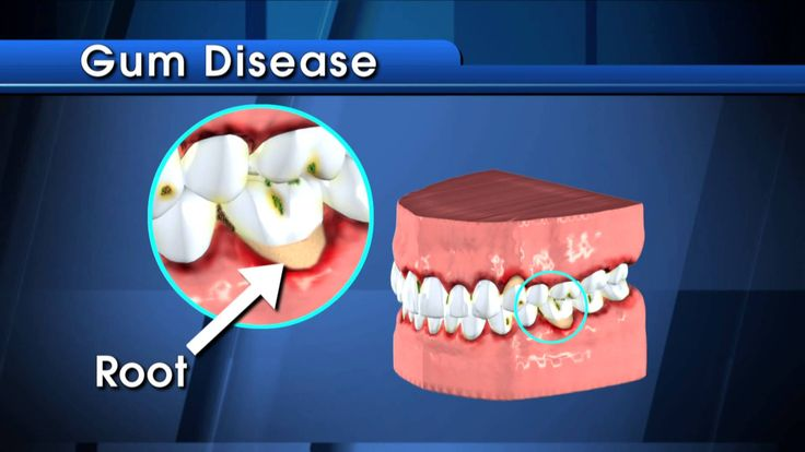 Learn what the American Dental Association has to say about what cavities are.