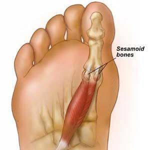 Pain in big toe causes and treatment, pictures, videos. Usual tips: sharp pain in big toe, joint when walking, after running, not gout, throbbing pain, nail,