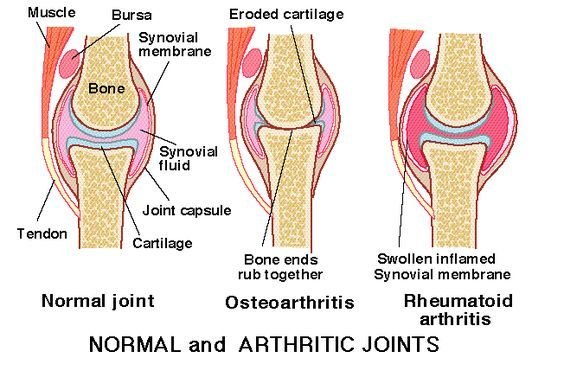 Rheumatoid Arthritis Symptoms Hands -- Be sure to check out this.