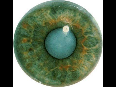 Катаракта хрусталика глаза после операции по удалению. Офтальмология вид...