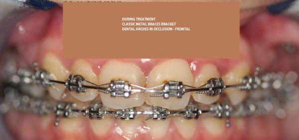 Dental Treatments/ Dental  Romania.   #orthodontics, #orthodontist, #dentists, #dentaltourism , #dentaltourismRomania, #dentalabroad , #dentaltravel, #dentaltreatmentsRomania #affordabledental #dentalclinicsRomania #topdentalclinicsRomania #dentalwebsites #dentalwebsitesRomania  http://www.intermedline.com/services/medical-tourism-romania-treatment/dental-clinics-romania#.UrdcSvQW3sk  CONTACT NOW! office@intermedline.com ; Phone: 1 518 620 42 25