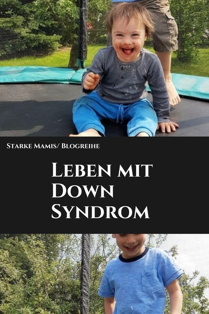 Das Leben mit einem Down Syndrom Kind