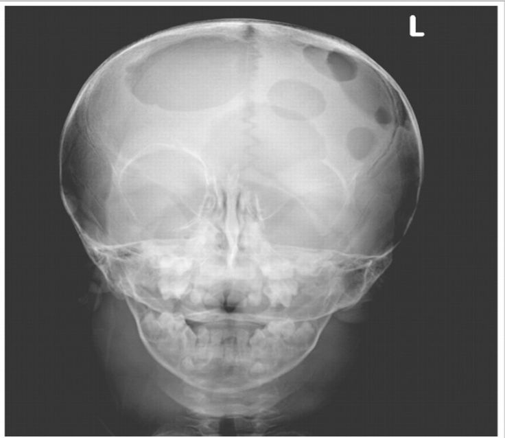 Niño de dos años con historia de eczema refractario de 1 año de evolución. Tienen 4 semanas con masas cervicales, peso y talla baja para su edad, presencia de proptosis bilateral y secreción serosa de ambos oídos así como erupción en cuero cabelludo y cráneo con deformaciones palpables. Laboratorialmente con anemia (Hgb de 6.6 g/dL), sin leucocitos. Rx con lesiones líticas. Biopsia de ganglios linfáticos revela histiocitosis de células de Langerhans.