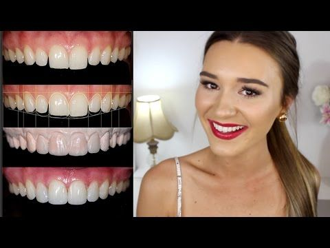 How Dr Lazaris transformed one of Australia's fave beauty vloggers, Shani Grimmond's teeth | Dr Angelo Lazaris