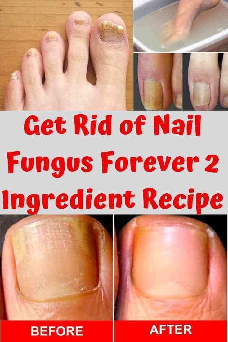 Get Rid Of Nail Fungus Forever 2 Ingredient Recipe Nail Fungus