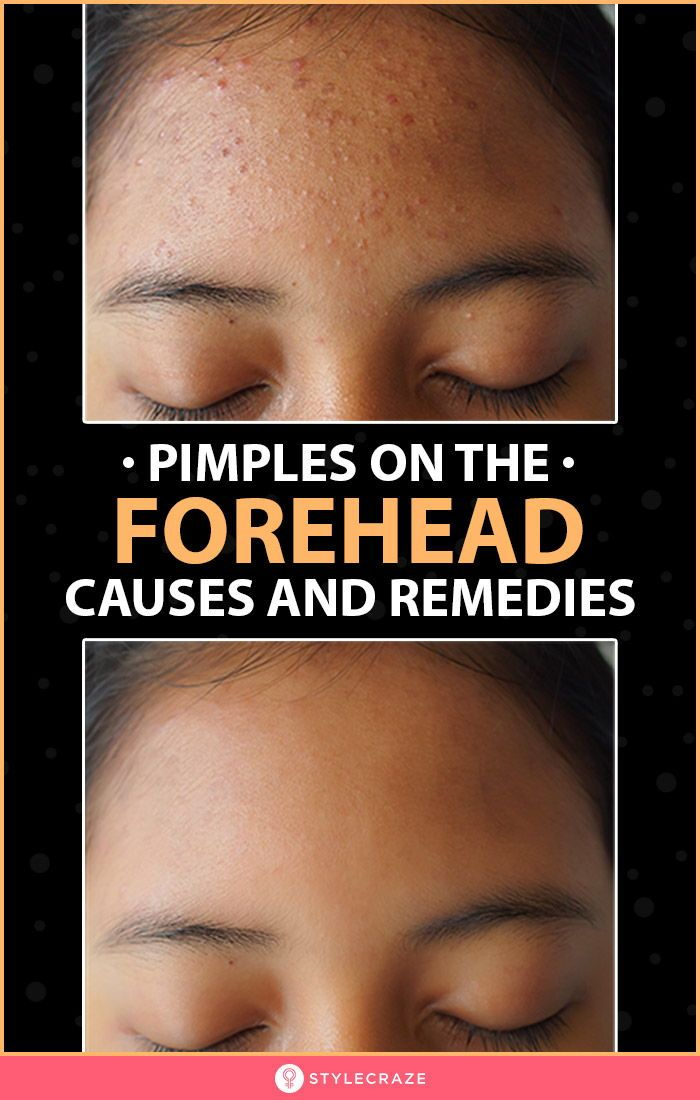 256843645d6dd0d60e2475437ff92766 - How To Get Rid Of Little Red Bumps On Forehead