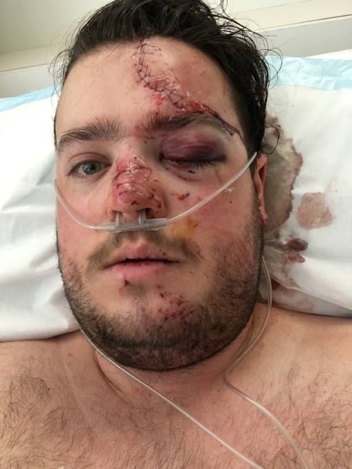 Matt Graham in the hospital after a car accident. http://www.hawkesburygazette.com.au/story/4210726/plea-to-stock-owners/