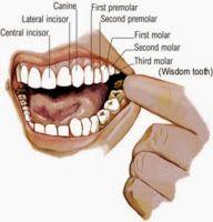 Cara mengobati sakit gigi yang berlubang tidak selalu dengan obat kimia atau ke dokter karena dengan bahan alami sudah bisa mengobati sakit gigi yang berlubang.