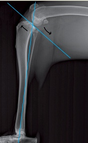 The tibial plateau angle (TPA) or slope differs greatly ...