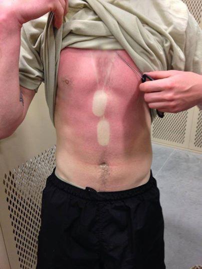 That's gotta hurt!  OutOfRegs - Archives | Dog Tag Sunburn