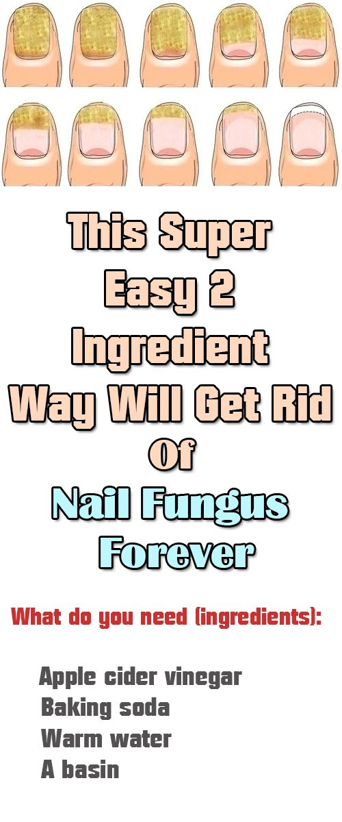 This Super Easy 2 Ingredient Way Will Get Rid Of Nail Fungus Forever  Nail fungus is an awful sight that can also have serious consequences. Removing the fungus is a difficult task, as synthetic drugs are just not efficient, so the fungus settles down and creates bigger problems.