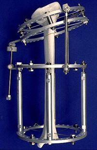 Limb Length Discrepancy Treatments and Limb Lengthening at TSRHC