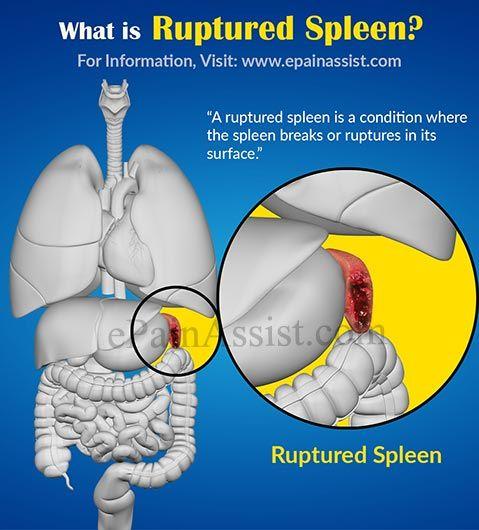 What is Ruptured Spleen? Read: http://www.epainassist.com/abdominal-pain/spleen/ruptured-spleen