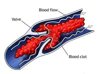 Tips How to Stop Blood Clots