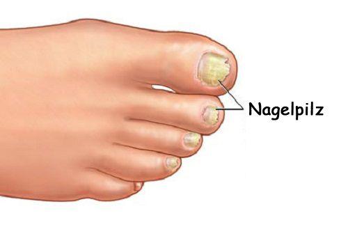 Pilzerkrankungen können an allen Körperteilen auftreten, doch am häufigsten machen sich Pilze im Nagelbereich, an den Füßen und in feucht-warmen Körperbereichen wie den Achselhöhlen breit. Auch Schuppen auf der Kopfhaut können durch eine Pilzerkrankung entstehen.