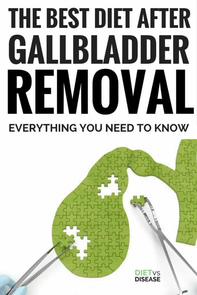 The Best Diet After Gallbladder Removal: Everything You