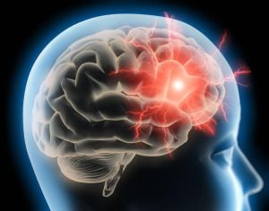 Migraine may have long-lasting effects on the brain's structure, according to a new study. The study found that migraine raised the risk of brain lesions, white matter abnormalities and altered brain volume compared to people without the disorder. The association was even stronger in those with migraine with aura.