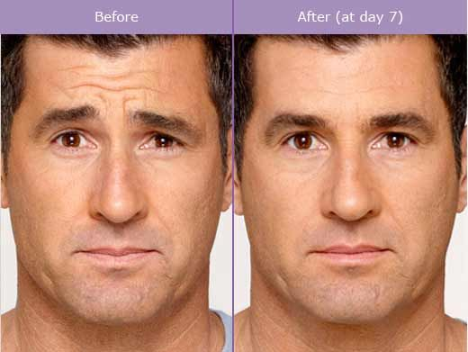 BOTOX® Cosmetic is a prescription medicine that is injected into muscles and used to improve the look of moderate to severe frown lines between the eyebrows. www.mackmd.com Botox for guys Tampa, FL