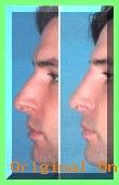 Nose Jobs Inspiration | Non Surgical Nose Job | Instant Rhinoplasty Without Surgery Californi…