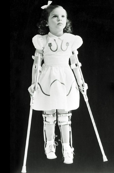 WEEK 3, Ch. 3. Little girl with leg braces for polio.  Polio used to put fear in our hearts until Salk invented a vaccine.