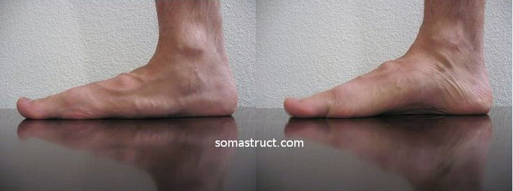 Short Foot Exercise Somastruct Foot Exercises Exercise Healthy Skin Care