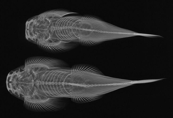 X ray - Hledat Googlem