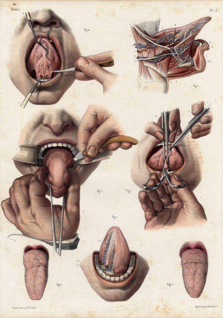 Jean Baptiste Marc Bourgery (https://pinterest.com/pin/287386019948321810) & Nicolas Henri Jacob - Atlas of Human Anatomy and Surgery. Tome 7. Pl. F.  [Traité complet de l'anatomie de l'homme comprenant la médecine opératoire (1831-1854  https://pinterest.com/pin/287386019941966857/ )].