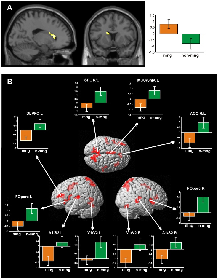 Significant differential effects of fMRI analysis (cluster-level corrected at p<0.0013).  Dissociated Neural Processing for Decisions in Managers and Non-Managers.  Functional neuroimaging studies of decision-making so far mainly focused on decisions under uncertainty or negotiation with other persons. Dual process theory assumes that, in such situations, decision making relies on either a rapid intuitive, automated or a slower rational processing system.