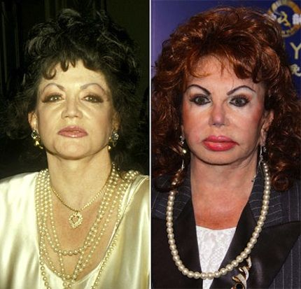 Jackie Stallone plastic surgery before and after.  Oh. dear