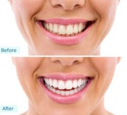 If you have concerns about your smile then teeth whitening is a fantastic solution. Nobody deserves to feel a lack of confidence in their smile.