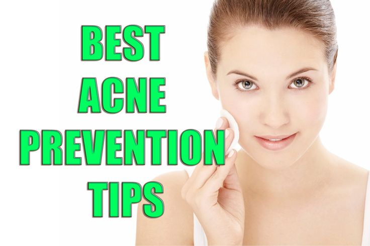 12 Best Practices To Prevent Acne – AcneHealingTips.com
